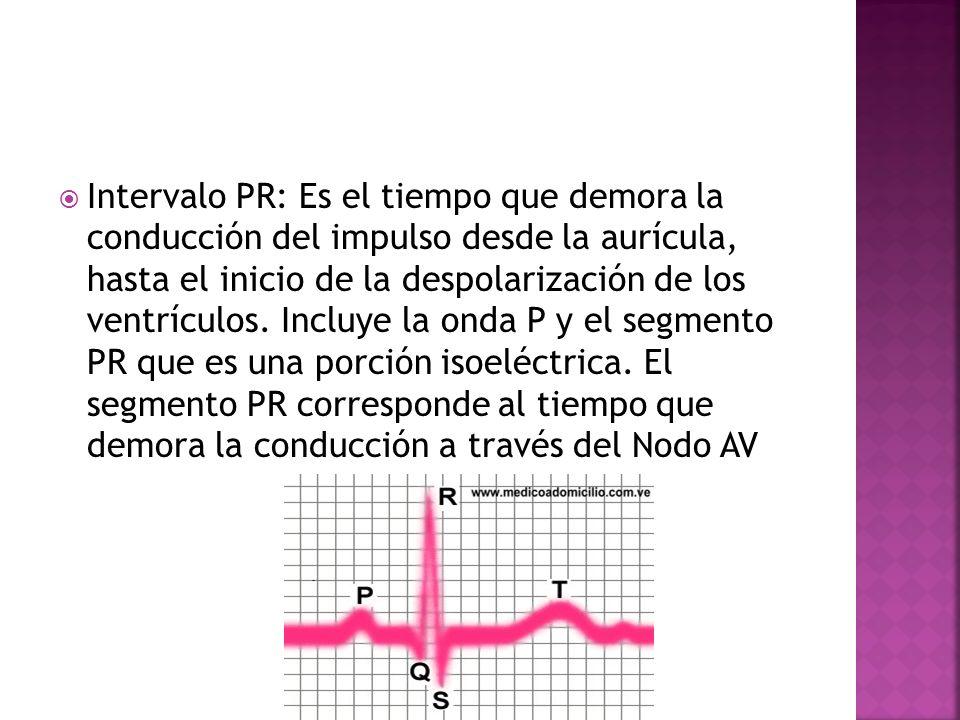 Intervalo PR: Es el tiempo que demora la conducción del impulso desde la aurícula, hasta el inicio de la despolarización de los ventrículos. Incluye l