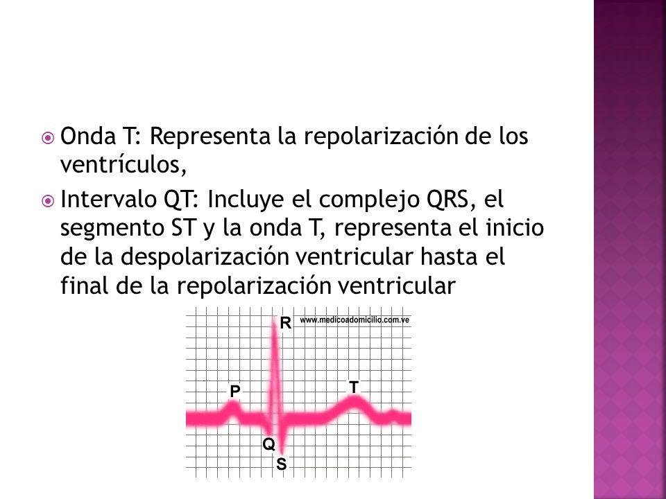 Onda T: Representa la repolarización de los ventrículos, Intervalo QT: Incluye el complejo QRS, el segmento ST y la onda T, representa el inicio de la