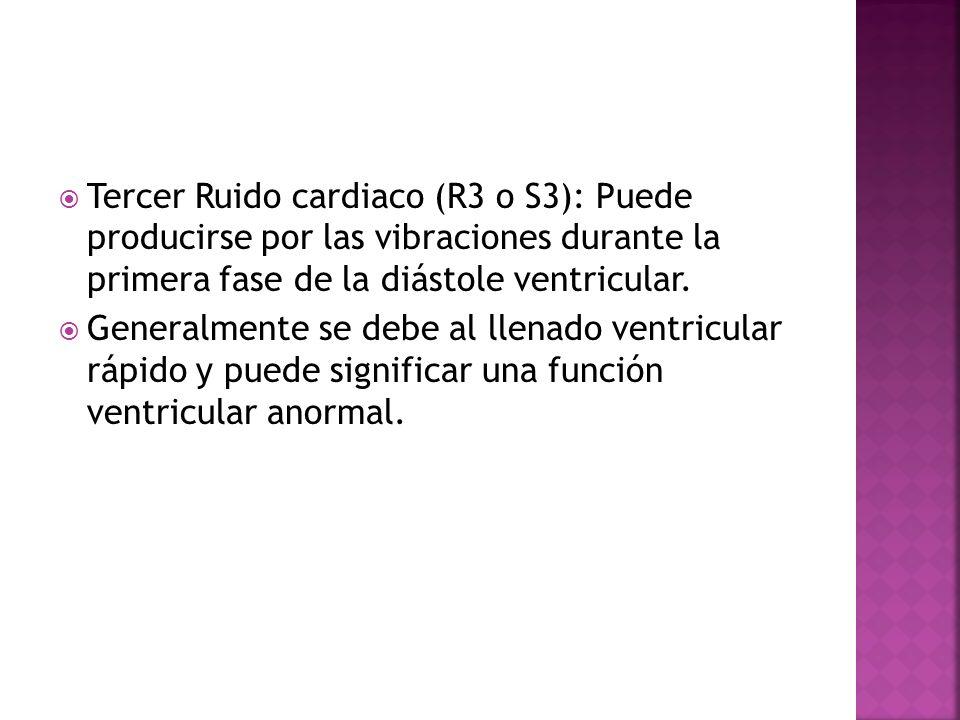Tercer Ruido cardiaco (R3 o S3): Puede producirse por las vibraciones durante la primera fase de la diástole ventricular. Generalmente se debe al llen