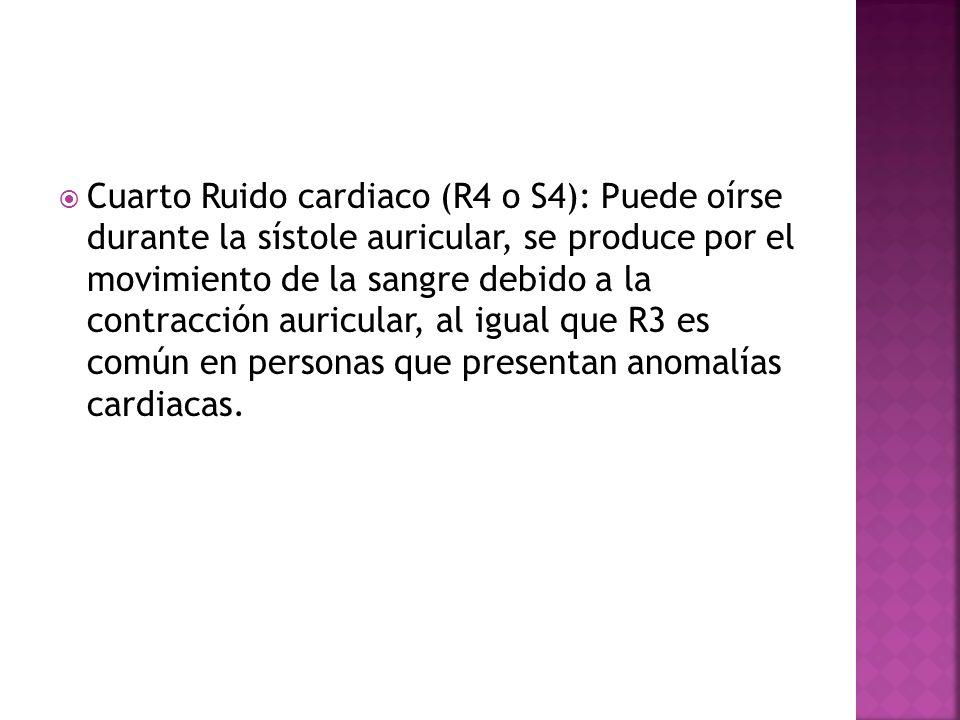 Cuarto Ruido cardiaco (R4 o S4): Puede oírse durante la sístole auricular, se produce por el movimiento de la sangre debido a la contracción auricular