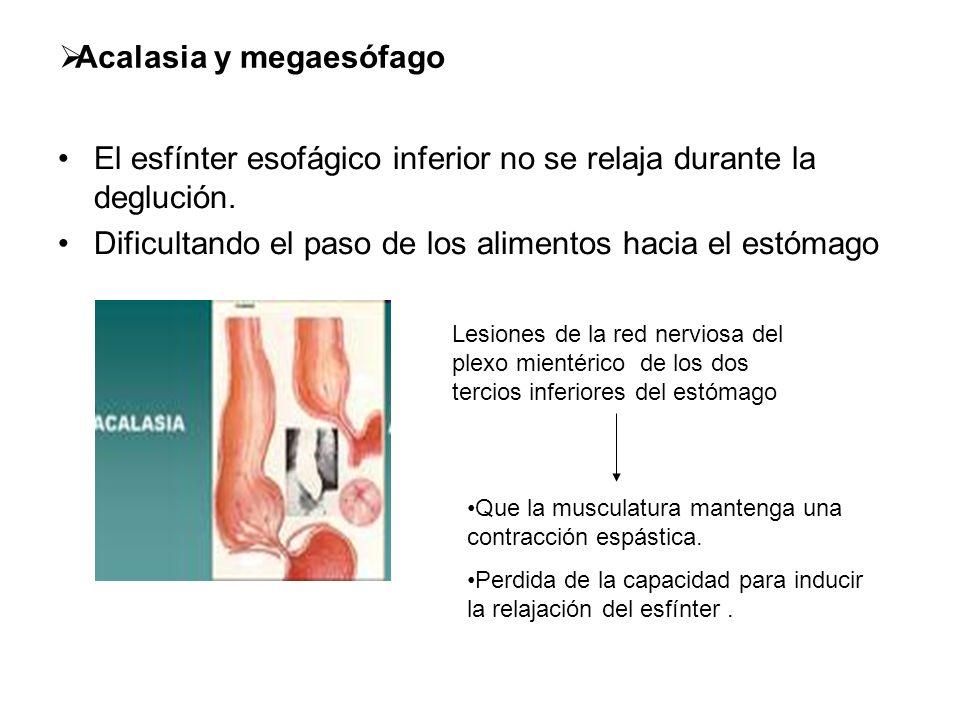 Acalasia y megaesófago El esfínter esofágico inferior no se relaja durante la deglución. Dificultando el paso de los alimentos hacia el estómago Lesio