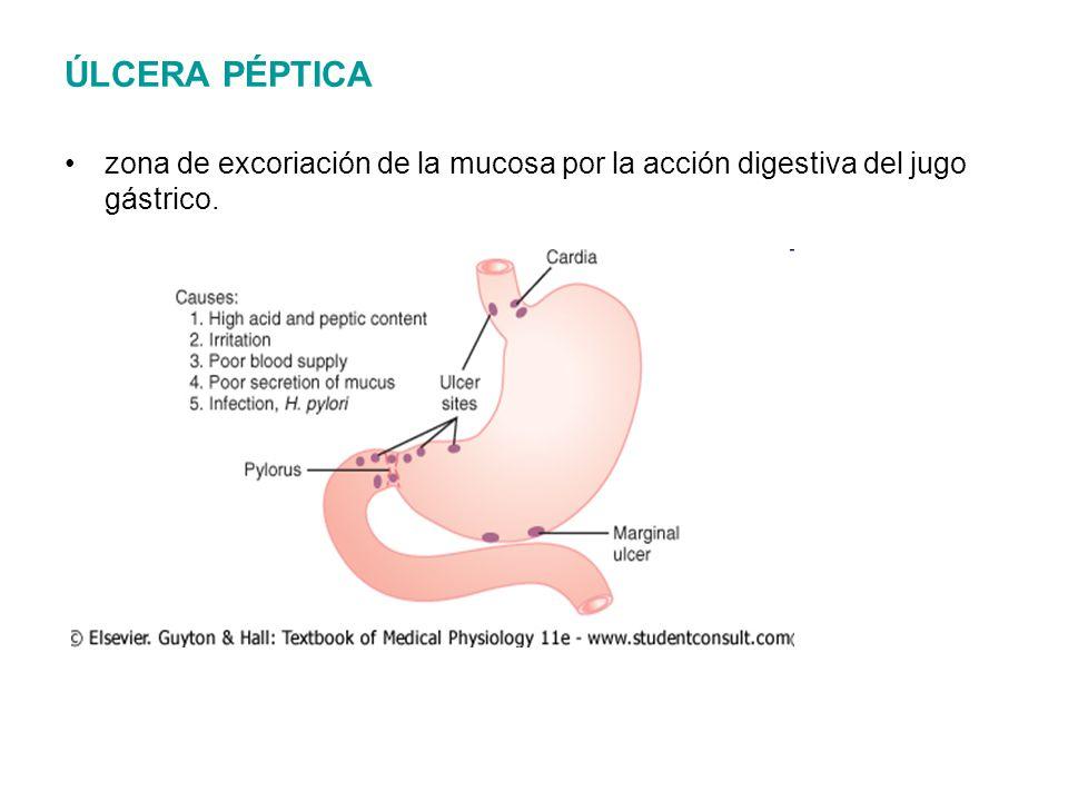 ÚLCERA PÉPTICA zona de excoriación de la mucosa por la acción digestiva del jugo gástrico.
