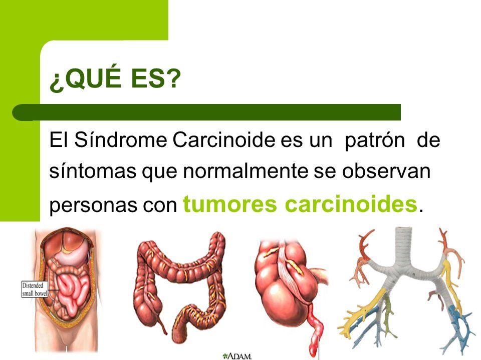 ¿QUÉ ES? El Síndrome Carcinoide es un patrón de síntomas que normalmente se observan personas con tumores carcinoides.