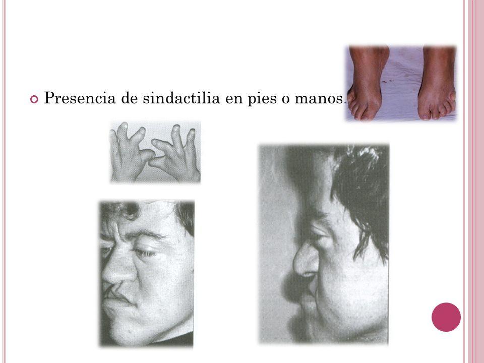 Presencia de sindactilia en pies o manos.