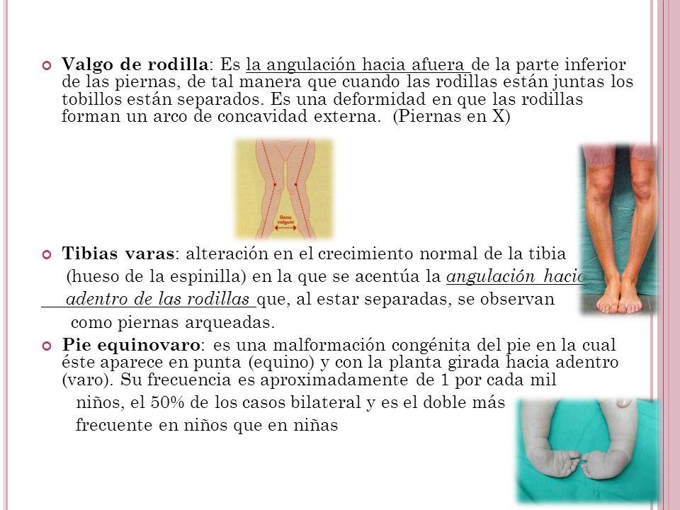 Valgo de rodilla : Es la angulación hacia afuera de la parte inferior de las piernas, de tal manera que cuando las rodillas están juntas los tobillos están separados.