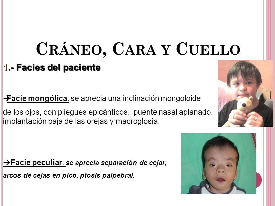 C RÁNEO, C ARA Y C UELLO 1.- Facies del paciente Facie mongólica: se aprecia una inclinación mongoloide de los ojos, con pliegues epicánticos, puente nasal aplanado, implantación baja de las orejas y macroglosia.
