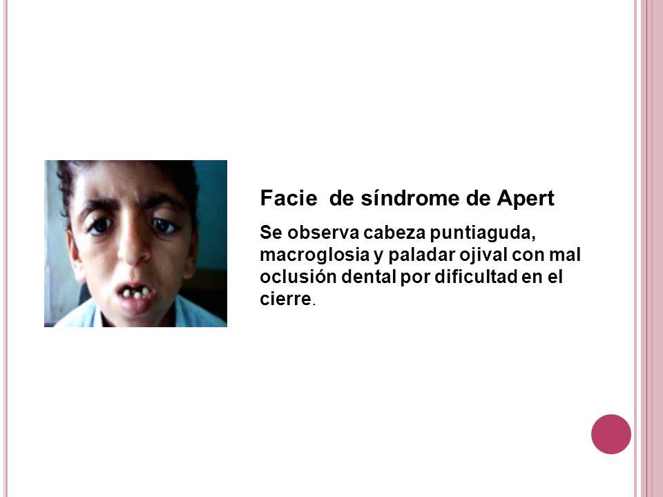 Facie de síndrome de Apert Se observa cabeza puntiaguda, macroglosia y paladar ojival con mal oclusión dental por dificultad en el cierre.