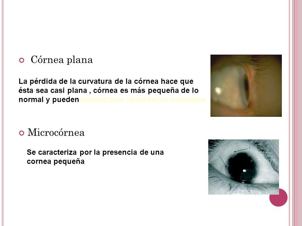 Córnea plana Microcórnea La pérdida de la curvatura de la córnea hace que ésta sea casi plana, córnea es más pequeña de lo normal y pueden encontrarse opacidades corneales.