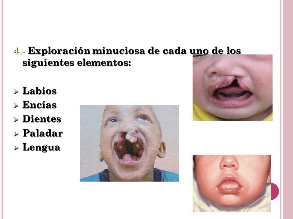 4.- Exploración minuciosa de cada uno de los siguientes elementos: Labios Labios Encías Encías Dientes Dientes Paladar Paladar Lengua Lengua