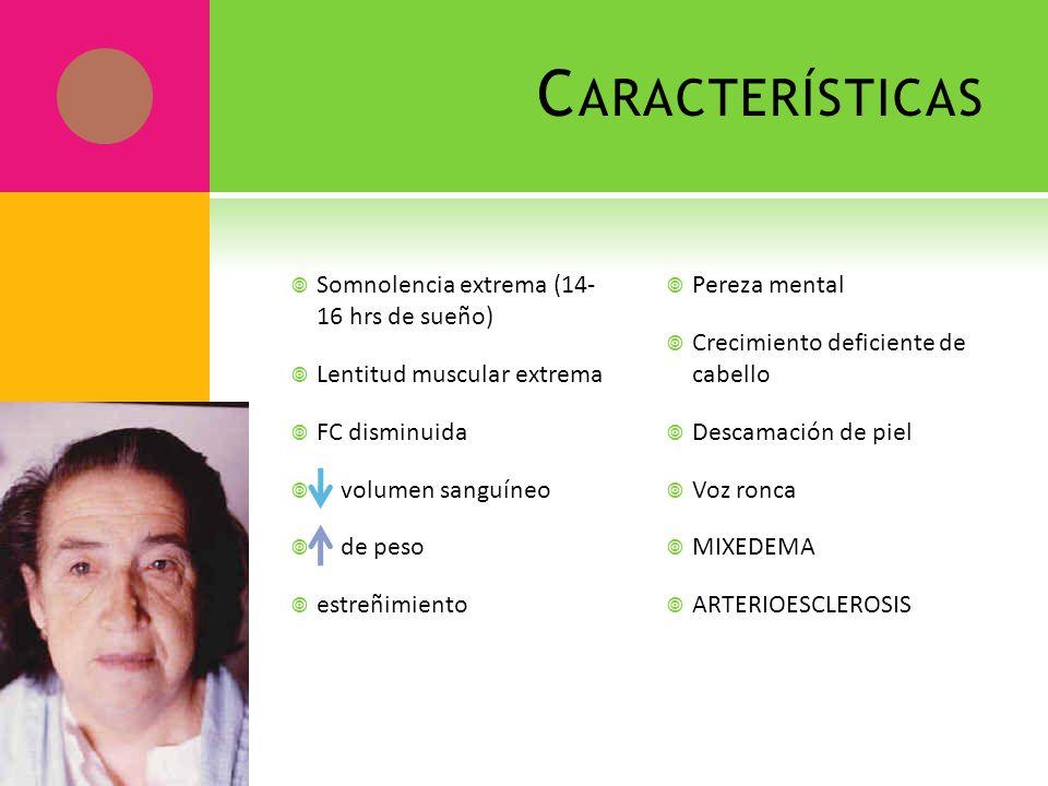 C ARACTERÍSTICAS Somnolencia extrema (14- 16 hrs de sueño) Lentitud muscular extrema FC disminuida volumen sanguíneo de peso estreñimiento Pereza ment