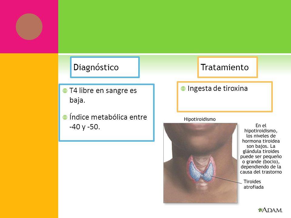 Diagnóstico T4 libre en sangre es baja. Índice metabólica entre -40 y -50. Tratamiento Ingesta de tiroxina
