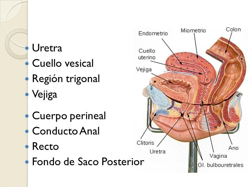Uretra Cuello vesical Región trigonal Vejiga Cuerpo perineal Conducto Anal Recto Fondo de Saco Posterior