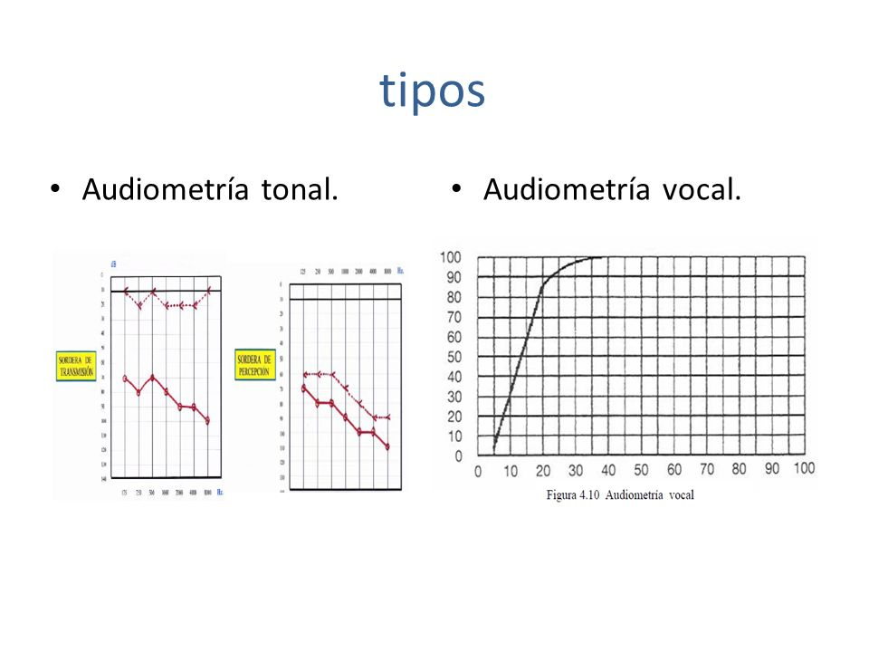 tipos Audiometría tonal. Audiometría vocal.