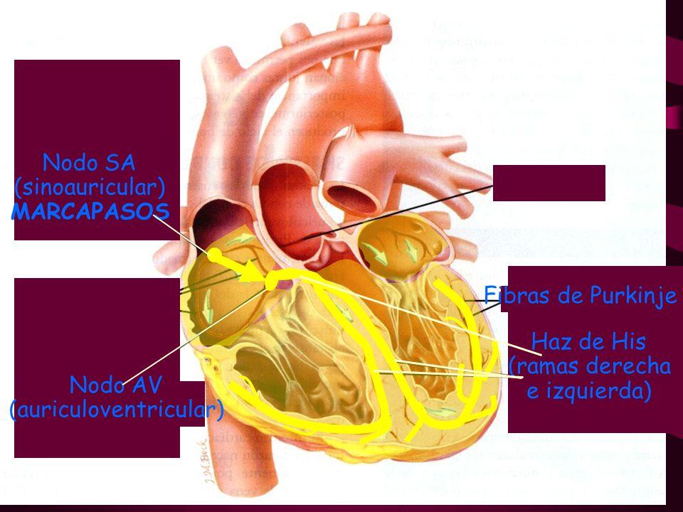 Nodo SA (sinoauricular) MARCAPASOS Fibras de Purkinje Haz de His (ramas derecha e izquierda) Nodo AV (auriculoventricular)