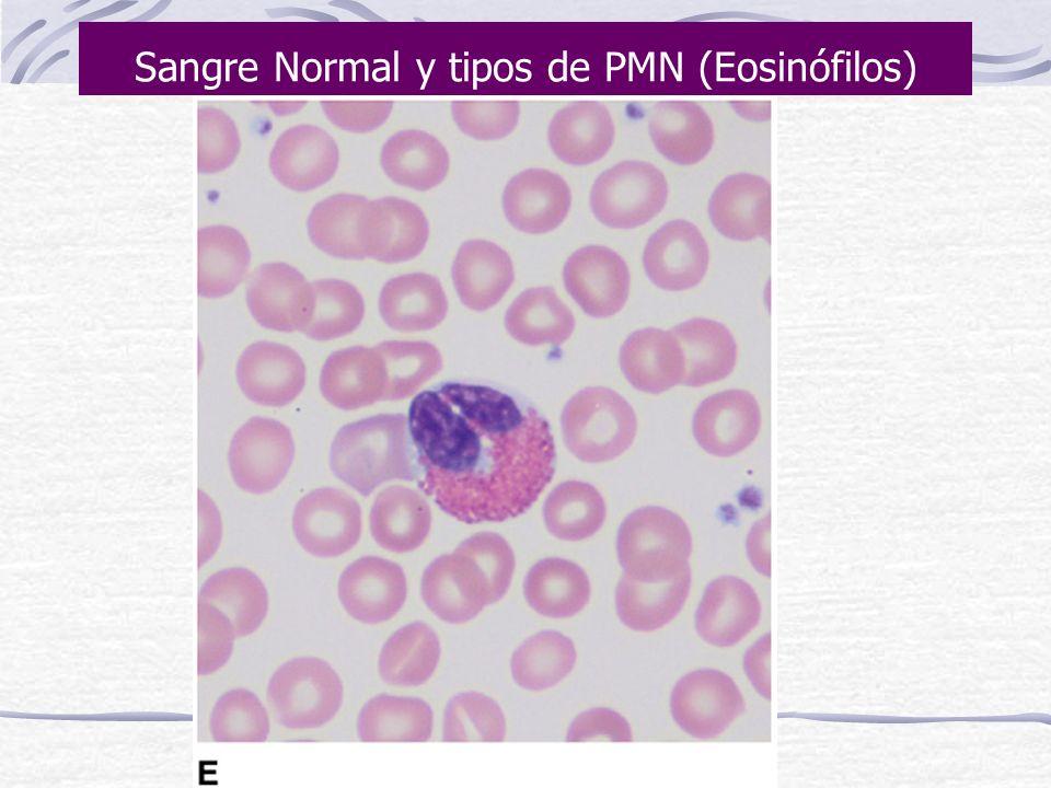 Sangre Normal y tipos de PMN (Neutrófilos)