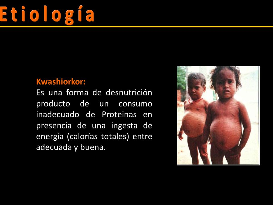Kwashiorkor: Es una forma de desnutrición producto de un consumo inadecuado de Proteinas en presencia de una ingesta de energía (calorías totales) entre adecuada y buena.