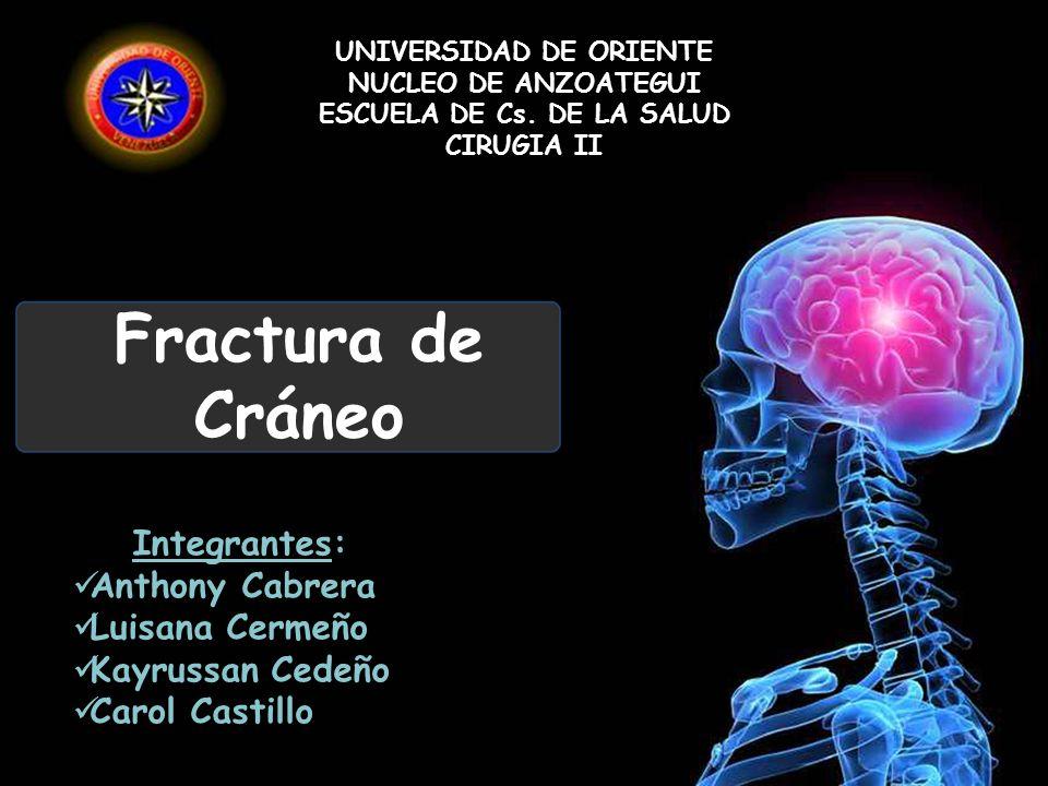 Fractura de Cráneo UNIVERSIDAD DE ORIENTE NUCLEO DE ANZOATEGUI ESCUELA DE Cs. DE LA SALUD CIRUGIA II Integrantes: Anthony Cabrera Luisana Cermeño Kayr