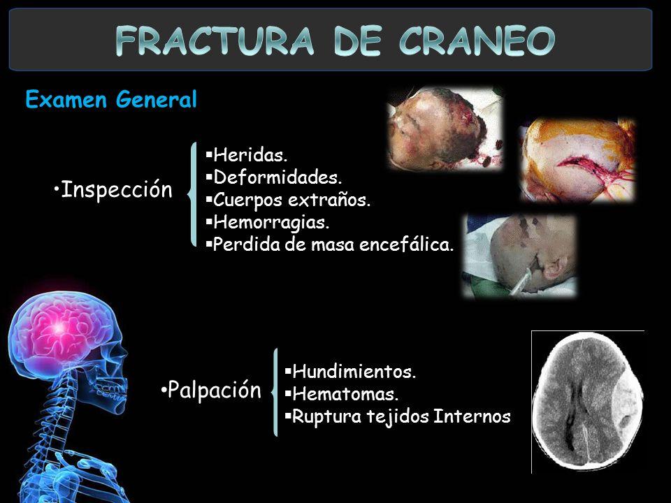 Examen General. Heridas. Deformidades. Cuerpos extraños. Hemorragias. Perdida de masa encefálica. Inspección Palpación Hundimientos. Hematomas. Ruptur