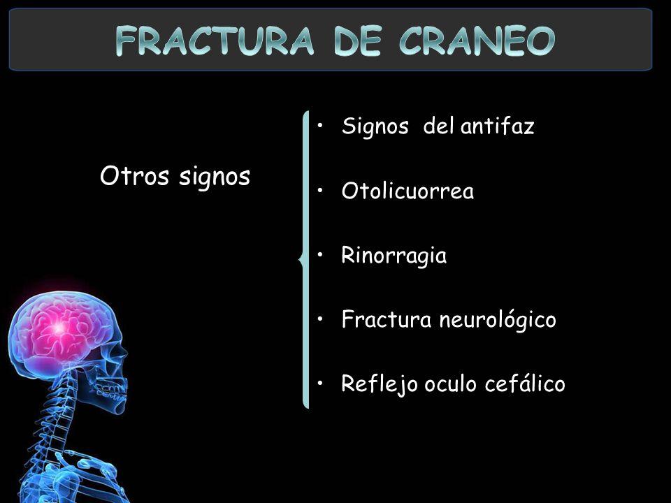 Signos del antifaz Otolicuorrea Rinorragia Fractura neurológico Reflejo oculo cefálico Otros signos