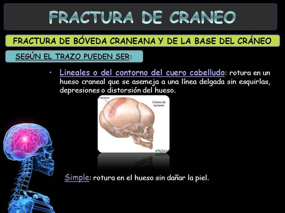 FRACTURA DE BÓVEDA CRANEANA Y DE LA BASE DEL CRÁNEO Lineales o del contorno del cuero cabelludo : rotura en un hueso craneal que se asemeja a una líne