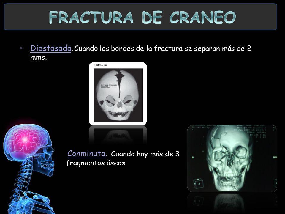 Diastasada. Cuando los bordes de la fractura se separan más de 2 mms. Conminuta. Cuando hay más de 3 fragmentos óseos