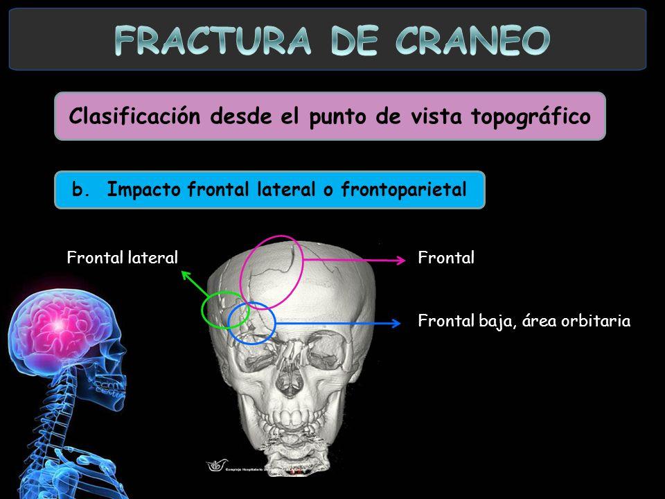 Clasificación desde el punto de vista topográfico b. Impacto frontal lateral o frontoparietal Frontal lateralFrontal Frontal baja, área orbitaria