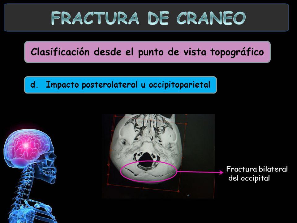 d. Impacto posterolateral u occipitoparietal Fractura bilateral del occipital