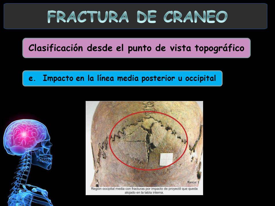 Clasificación desde el punto de vista topográfico e. Impacto en la línea media posterior u occipital