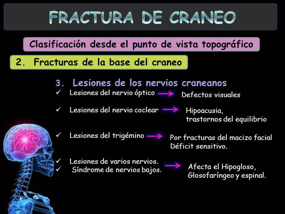 3. Lesiones de los nervios craneanos Lesiones del nervio óptico Lesiones del nervio coclear Lesiones del trigémino Lesiones de varios nervios. Síndrom