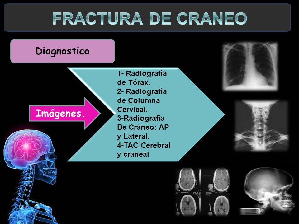 1- Radiografía de Tórax. 2- Radiografía de Columna Cervical. 3-Radiografía De Cráneo: AP y Lateral. 4-TAC Cerebral y craneal 1- Radiografía de Tórax.
