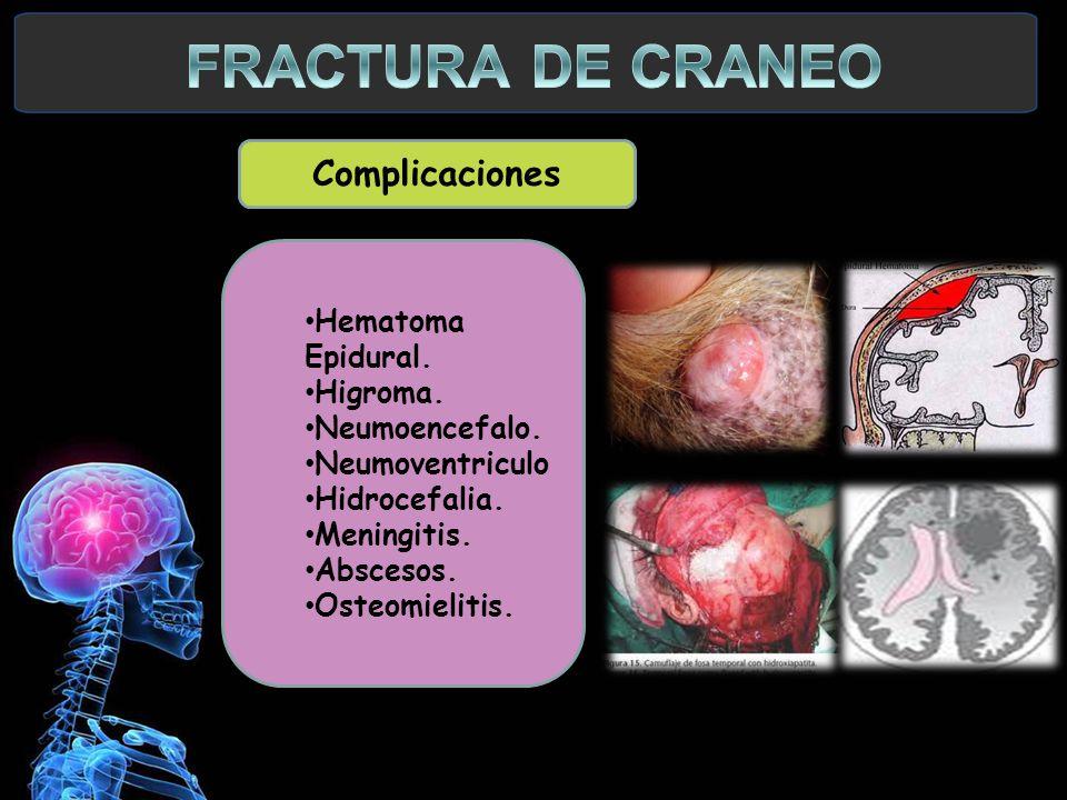 Complicaciones Hematoma Epidural. Higroma. Neumoencefalo. Neumoventriculo Hidrocefalia. Meningitis. Abscesos. Osteomielitis.