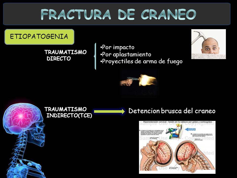 ETIOPATOGENIA TRAUMATISMO DIRECTO TRAUMATISMO INDIRECTO(TCE) Por impacto Por aplastamiento Proyectiles de arma de fuego Detencion brusca del craneo