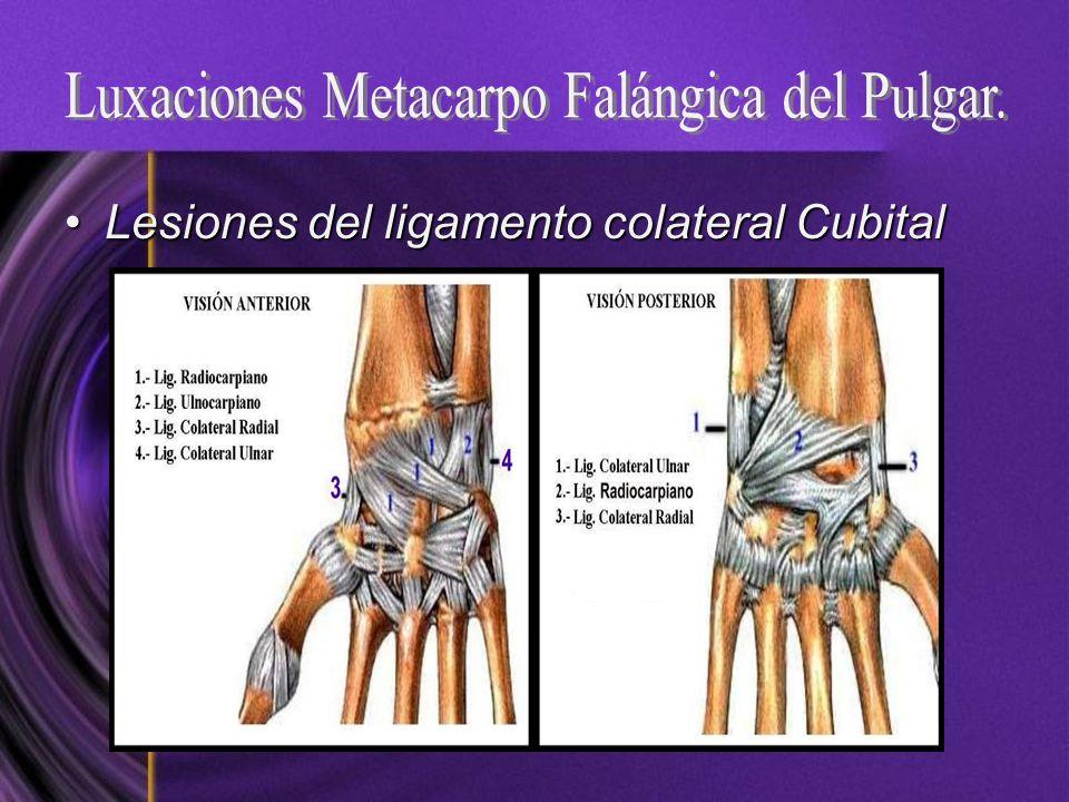 Lesiones del ligamento colateral CubitalLesiones del ligamento colateral Cubital