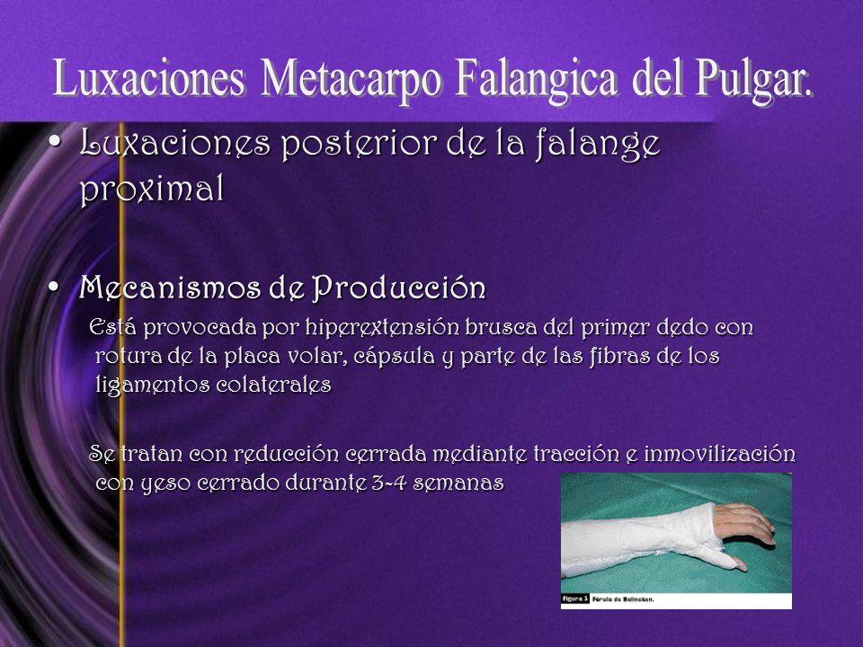 Luxaciones posterior de la falange proximalLuxaciones posterior de la falange proximal Mecanismos de ProducciónMecanismos de Producción Está provocada