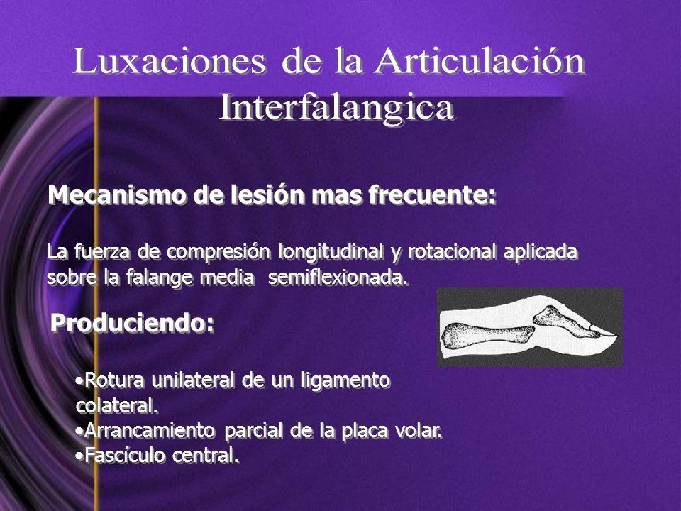 Mecanismo de lesión mas frecuente: La fuerza de compresión longitudinal y rotacional aplicada sobre la falange media semiflexionada. Mecanismo de lesi
