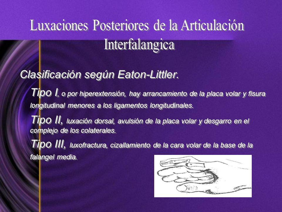 Clasificación según Eaton-Littler. Tipo I, o por hiperextensión, hay arrancamiento de la placa volar y fisura longitudinal menores a los ligamentos lo