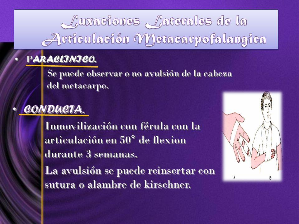 P ARACLINICO. Se puede observar o no avulsión de la cabeza del metacarpo. P ARACLINICO. Se puede observar o no avulsión de la cabeza del metacarpo.