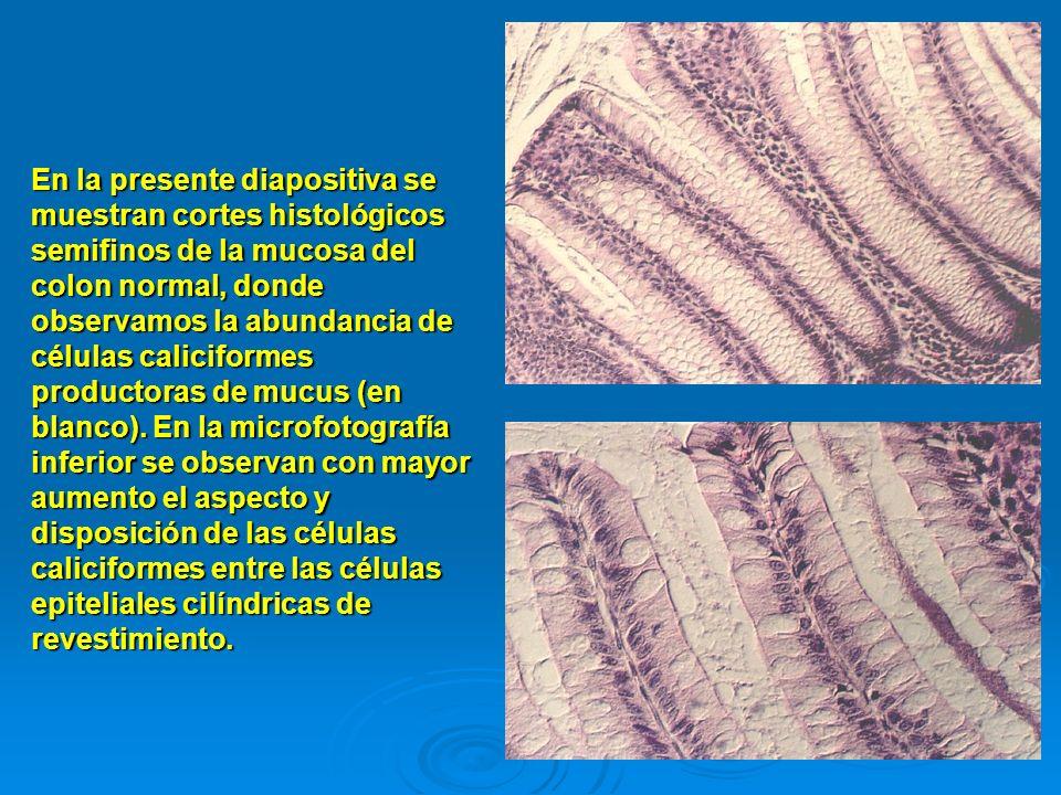En la presente diapositiva se muestran cortes histológicos semifinos de la mucosa del colon normal, donde observamos la abundancia de células calicifo