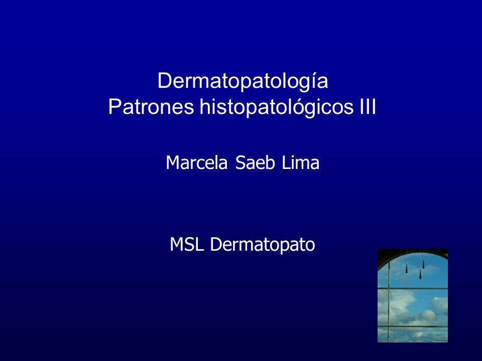Dermatitis de interface Liquen Nitidus Hombres = mujeres Niños, adultos jóvenes Dorso manos, extremidades, tórax, abdomen, genitales Fenómeno Koebner Múltiples pápulas del color de la piel, ligeramente blanquecinas Involucro mucosas raro Uñas Actínico