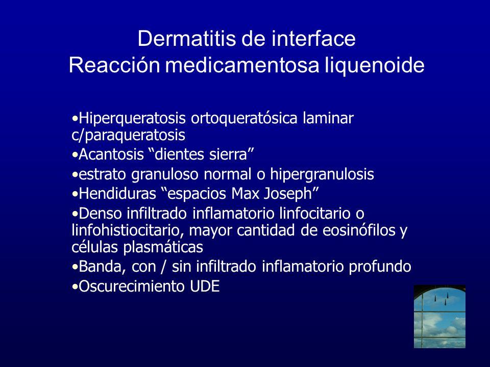 Dermatitis de interface Reacción medicamentosa liquenoide Hiperqueratosis ortoqueratósica laminar c/paraqueratosis Acantosis dientes sierra estrato gr
