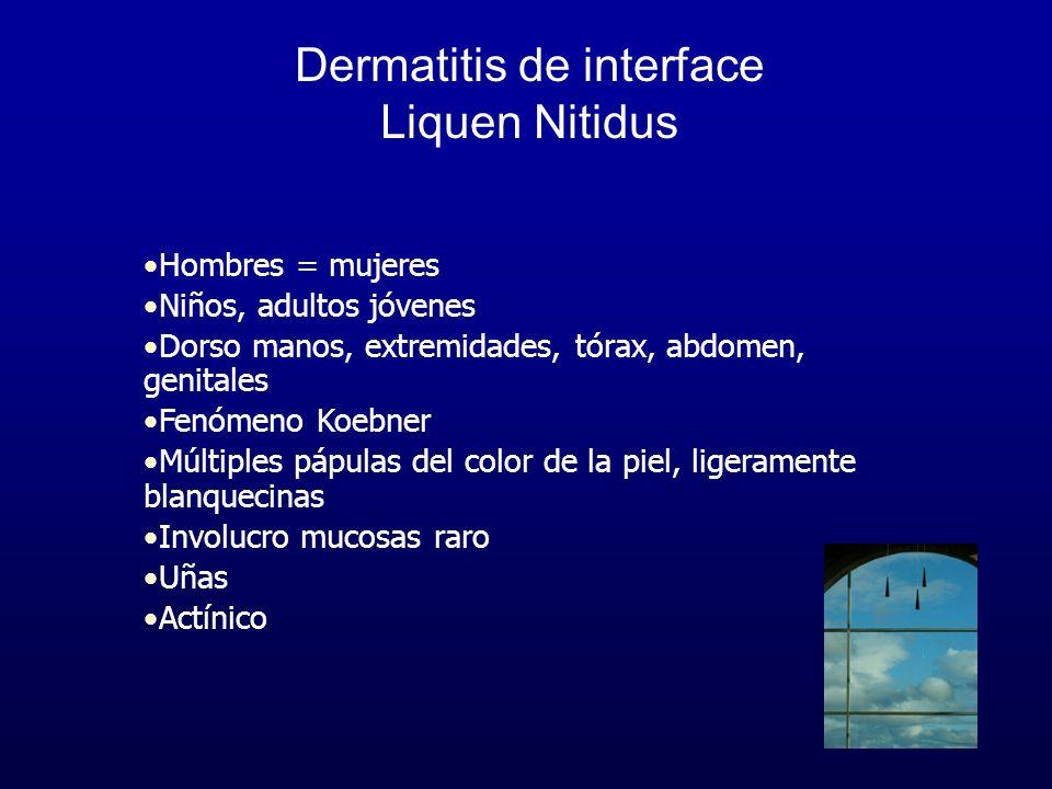 Dermatitis de interface Liquen Nitidus Hombres = mujeres Niños, adultos jóvenes Dorso manos, extremidades, tórax, abdomen, genitales Fenómeno Koebner