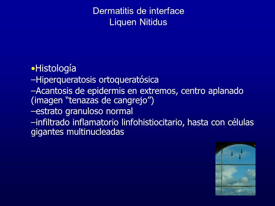 Dermatitis de interface Liquen Nitidus Histología –Hiperqueratosis ortoqueratósica –Acantosis de epidermis en extremos, centro aplanado (imagen tenaza