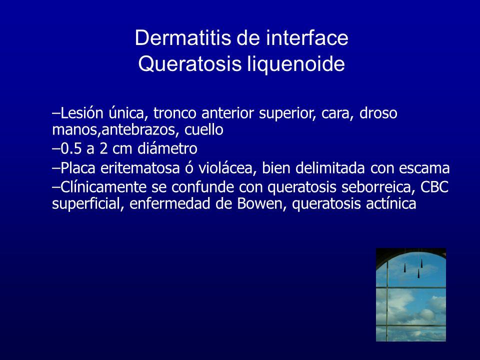 Dermatitis de interface Queratosis liquenoide –Lesión única, tronco anterior superior, cara, droso manos,antebrazos, cuello –0.5 a 2 cm diámetro –Plac