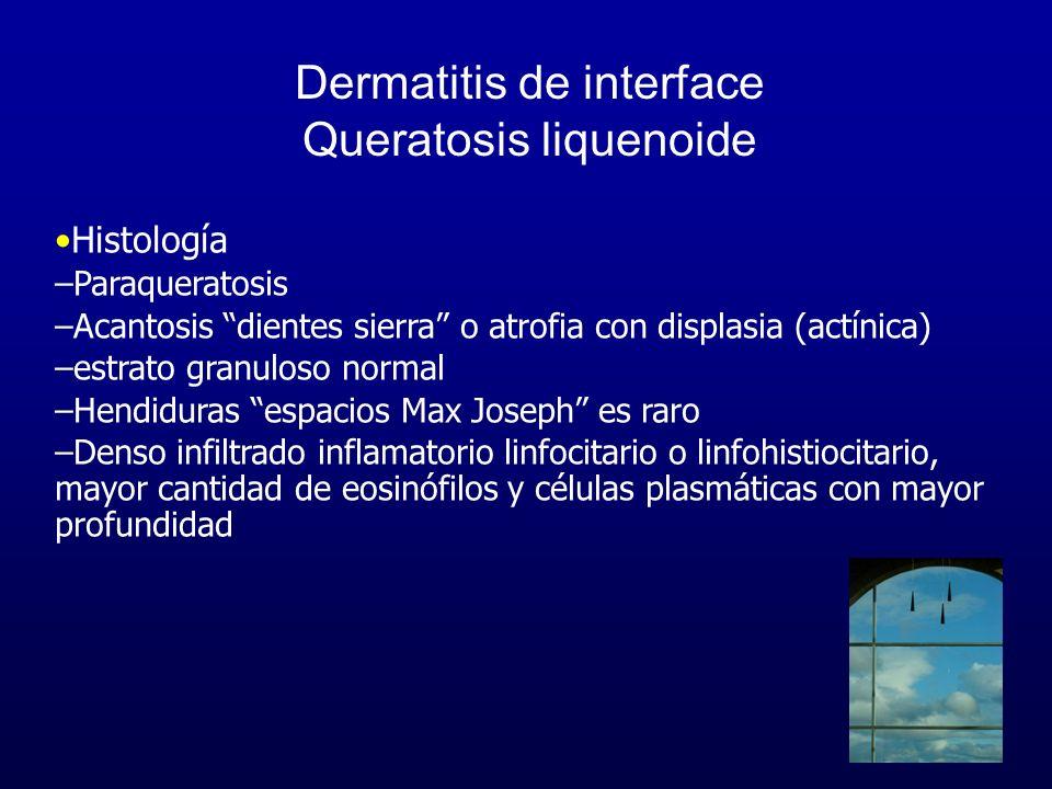 Dermatitis de interface Queratosis liquenoide Histología –Paraqueratosis –Acantosis dientes sierra o atrofia con displasia (actínica) –estrato granulo