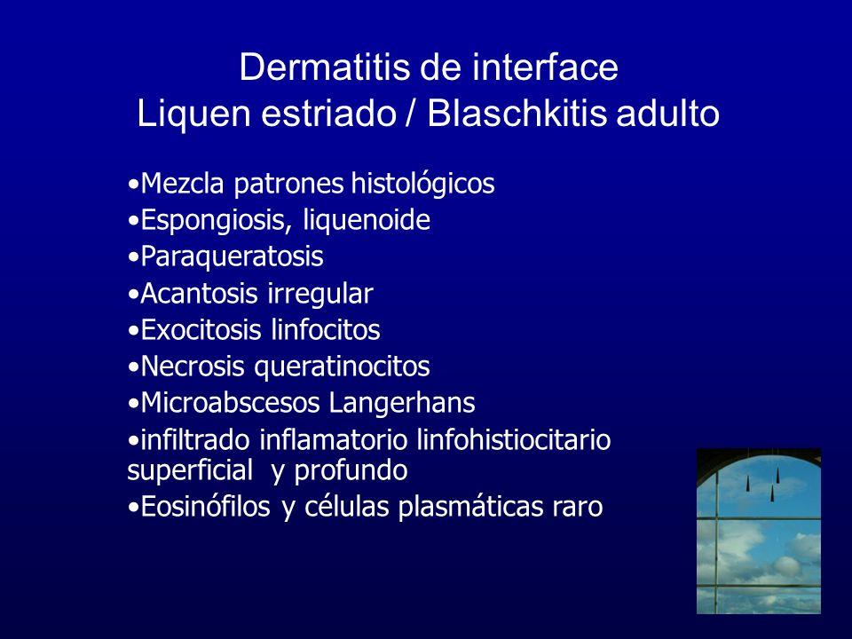 Dermatitis de interface Liquen estriado / Blaschkitis adulto Mezcla patrones histológicos Espongiosis, liquenoide Paraqueratosis Acantosis irregular E