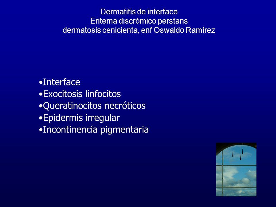 Dermatitis de interface Eritema discrómico perstans dermatosis cenicienta, enf Oswaldo Ramírez Interface Exocitosis linfocitos Queratinocitos necrótic