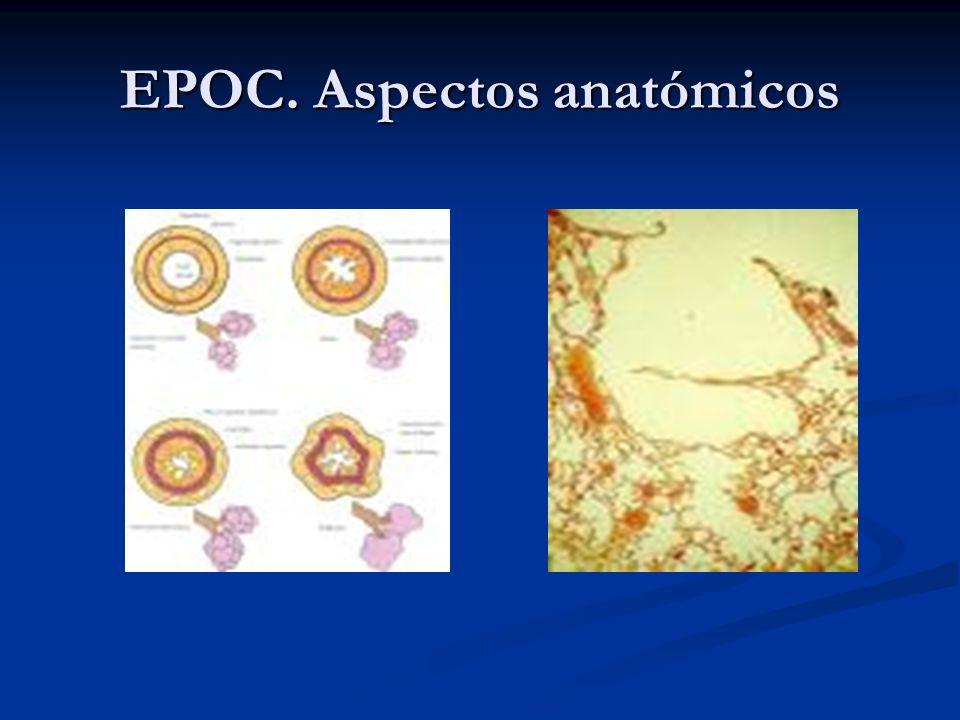 EPOC. Aspectos anatómicos