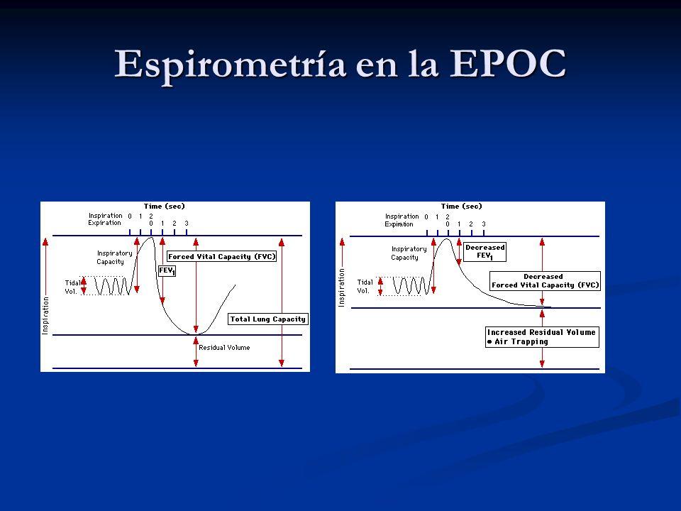 Espirometría en la EPOC