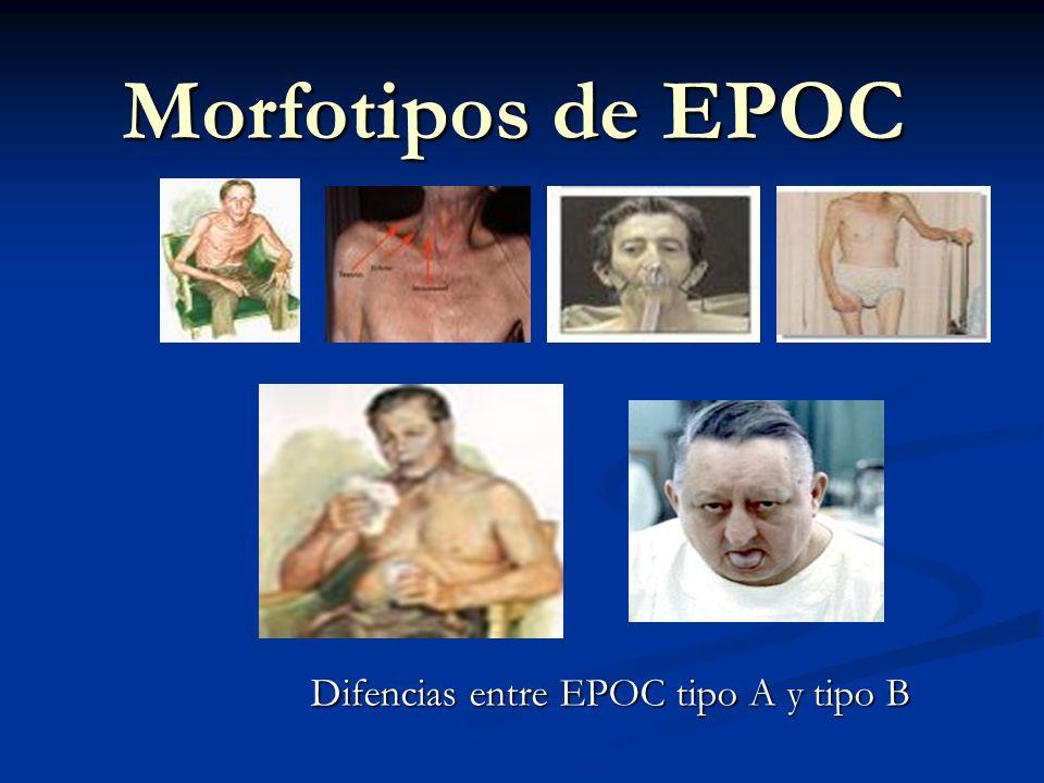 Morfotipos de EPOC Difencias entre EPOC tipo A y tipo B