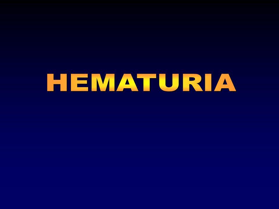 HEMATURIA Definición: –Más de cinco (5) eritrocitos por campo de Alto poder (540) en muestra fresca de orina (sedimento urinario) 10-15 ml de orina centrifugada a 1.500 rpm durante 5-7 minutos en más de 2 ocasiones.
